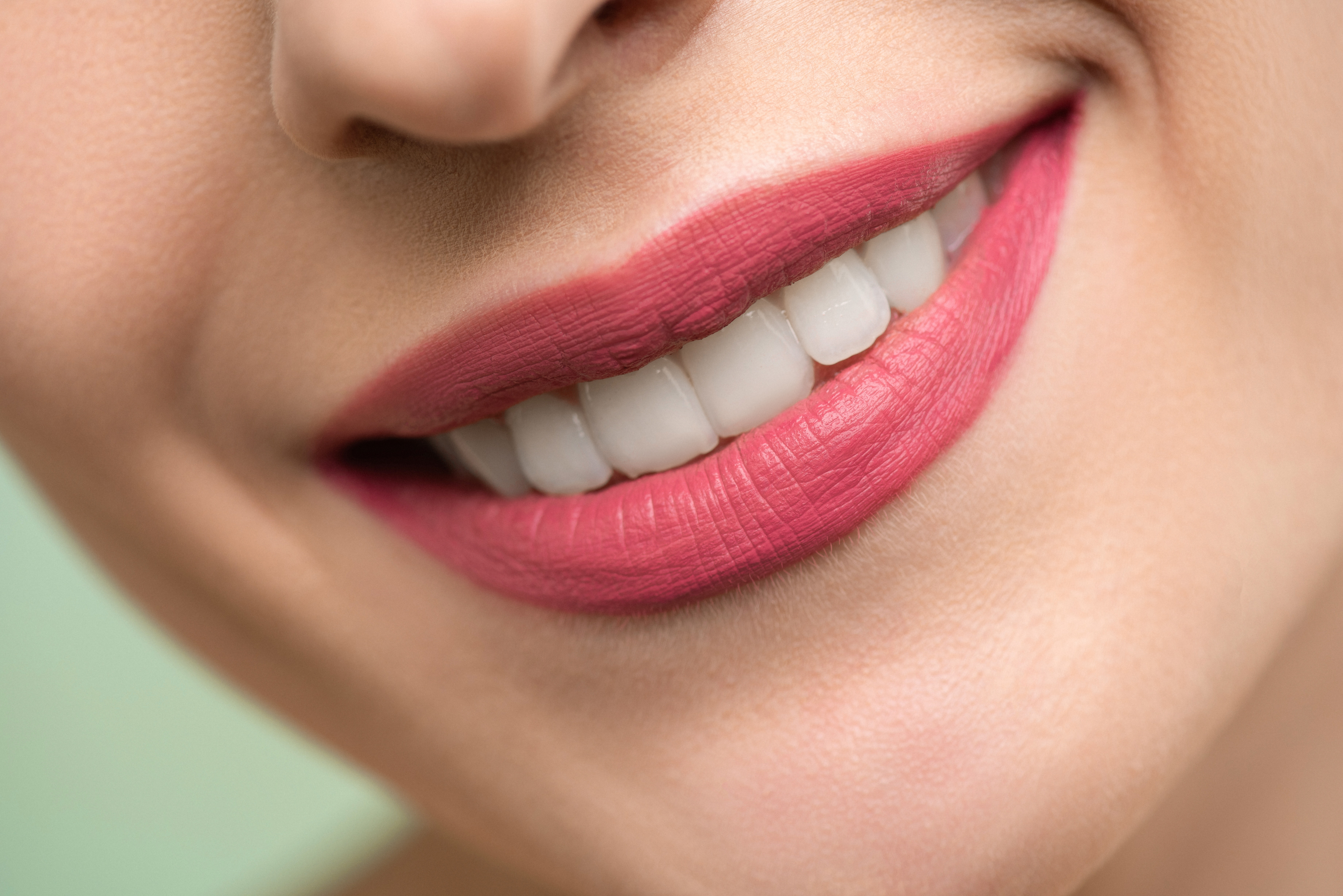 In-Chair Teeth Whitening vs. At-Home Whitening